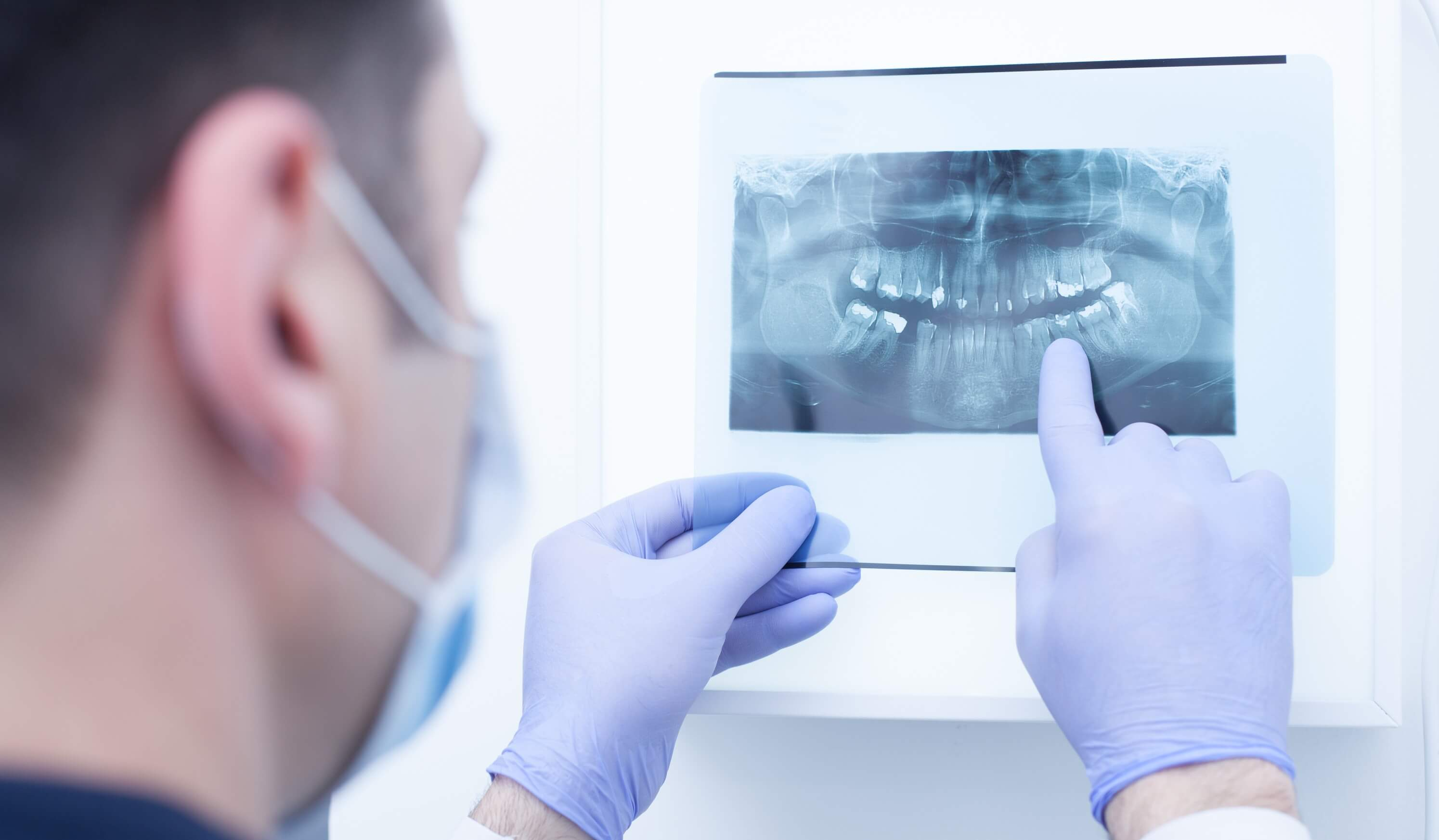 צילום רנטגן שיניים
