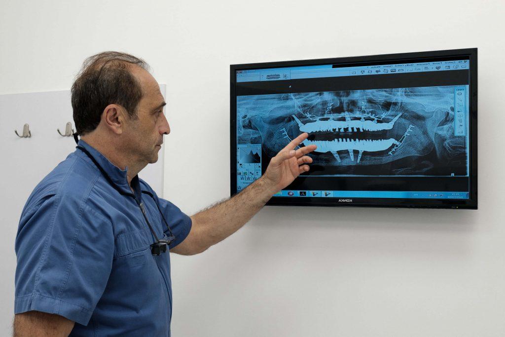 """ד""""ר לרי מראה מסך עם צילום שיניים"""