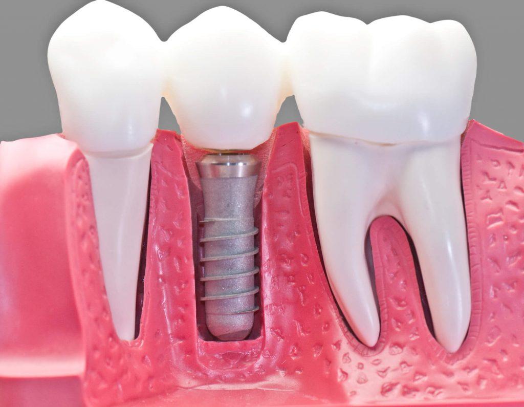 סוגי השתלת שיניים